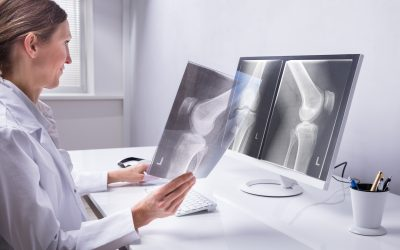 Hollywood Diagnostics Center Helps You Prepare for Your X-Ray