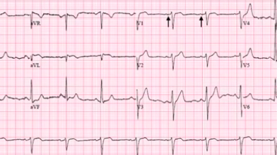 Important Facts About EKGs