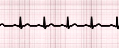 AI Algorithm to Allow EKGs to Screen for Underdiagnosed Heart Condition