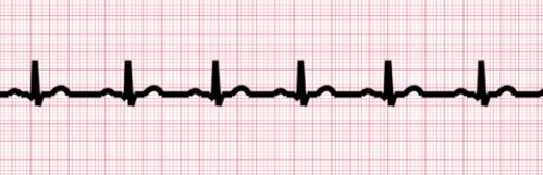 AI Algorithm to Allow EKGs to Screen for Underdiagnosed Heart Condition