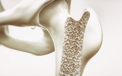 Studies Show Bone Thinning and Heart Disease Linked