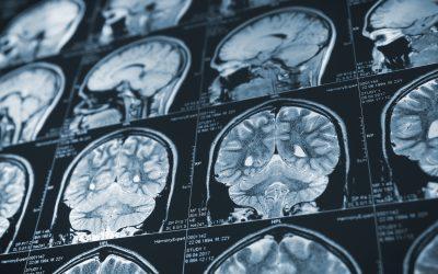 A Revolutionary Brain Scanning Helmet?