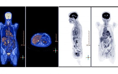 What Should You Expect When Getting a PET Scan?