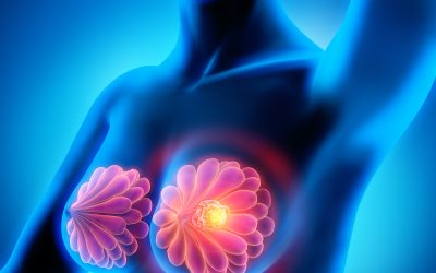 Monitoring for Breast Cancer