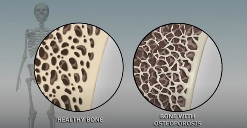 Why Getting a Bone Density Scan in Hollywood, Florida Important