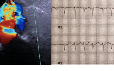 Echocardiograms vs. EKGs: What Are the Differences
