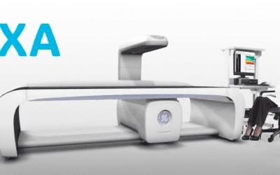 Does Medicare Cover Bone Density Tests