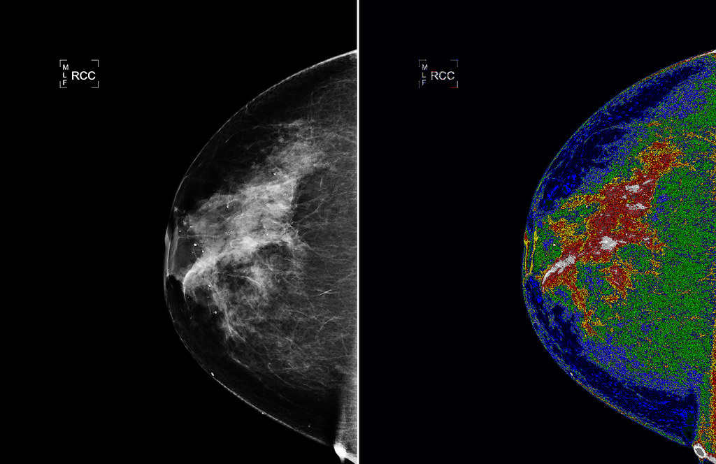 Doctors Fearing COVID-19 Vaccines Are Messing With Mammograms